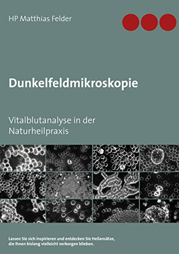 Dunkelfeldmikroskopie: Vitalblutanalyse in der Naturheilpraxis