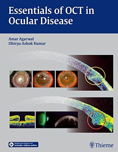 Optical Coherence Tomography in Ocular Disease by Amar Agarwal (2015-03-16)