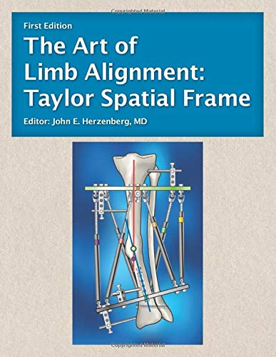 The Art of Limb Alignment: Taylor Spatial Frame