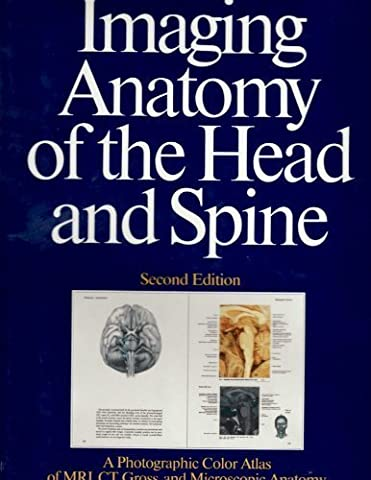 Imaging Anatomy of the Head and Spine: A Photographic Color Atlas of Mri, Ct, Gross, and Microscopic Anatomy in Axial Coronal and Sagittal Planes by H. N. Schnitzlein (1990-06-01)