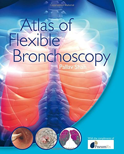 Atlas of Flexible Bronchoscopy