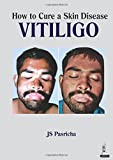 How to Cure a Skin Disease: Vitiligo