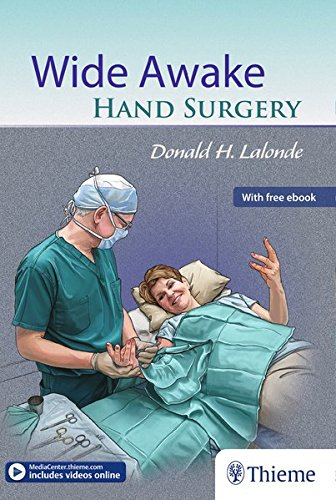 Download wide awake hand surgery read unlimited ebooks and download wide awake hand surgery read unlimited ebooks and audiobooks by fandeluxe Gallery