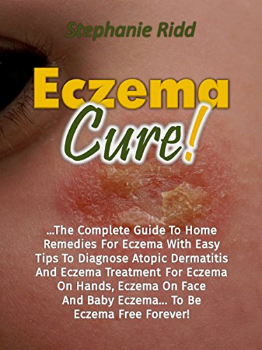 Eczema Cure!: The Complete Guide To Home Remedies For Eczema With Easy Tips To Diagnose Atopic Dermatitis And Eczema Treatment For Eczema On Hands, Eczema ... To Be Eczema Free (English Edition)