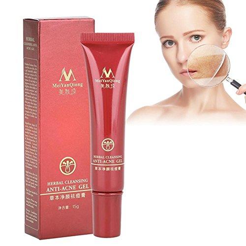 Akne Gel, Advanced Akne Entfernung gesundes Öl Gleichgewicht mit natürlichen pflanzliche Formel, Remover Makel Behandlung Creme Beauty Gesicht Hautpflege 15g