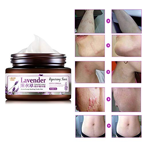 Allbesta Lavender Narbencreme für Aknenarben, Dehnungsstreifen und Narben Narbenentfernung Scar Fade Cream Narbensalbe Behandeln Sie neue und alte Narben