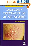 #4: Step By Step Treatment Of Acne Scars