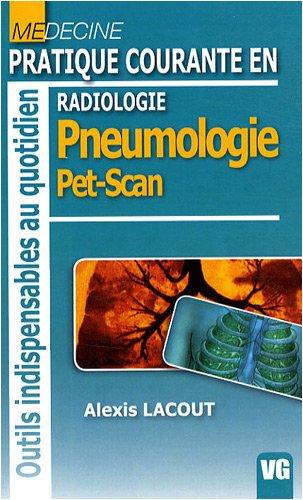 Radiologie : Pratique courante en pneumologie pet scan