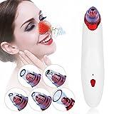 Die besten Schönheit elektrische Massage - Vacuum Massage Elektrische Microdermabrasion Instrument, Full Body Cupping Bewertungen
