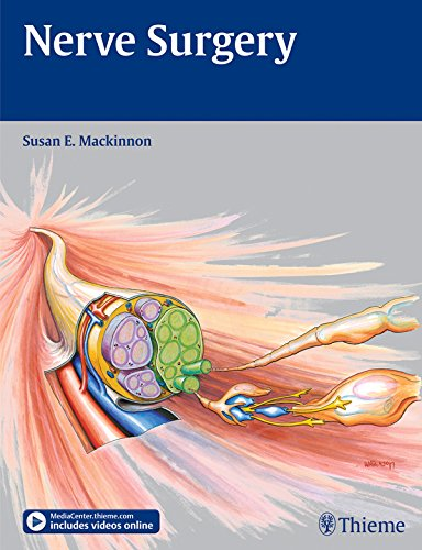 Nerve Surgery (English Edition)