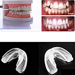 Teens Adult Health Care Straight Teeth System Orthodontic Anti-Molar Retainer cosmetic orthodontics cheapest braces STA
