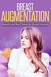 Breast Augmentation: Benefits and Best Choices for Breast Implants (Health and Wellness) (English Edition)