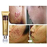 Designeez Ginseng Extract Against Black Dots Scar Removal Facial Blackhead Bleaching Cream