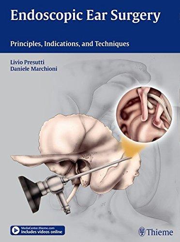 Endoscopic Ear Surgery by Livio Presutti (2014-11-25)