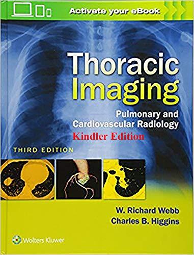 Thoracic Imaging: Pulmonary and Cardiovascular Radiology 3rd Edition by W. Richard Webb (English Edition)