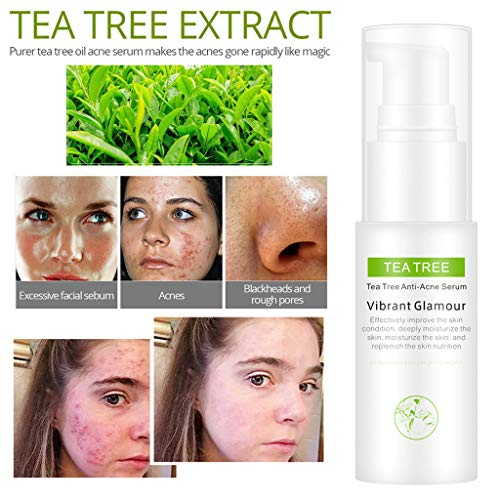 LCLrute Tea Tree Anti-acne Face cream Acne Scar Cream Shrink Pores Facial Eliminates Acnes Cream Oil control Repair Spot