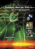 Abenteuer Medizin - Tumorzellen im Visier (Keywords: Krebs, Tumor, Tumore, Gesundheit, Endoskopie)