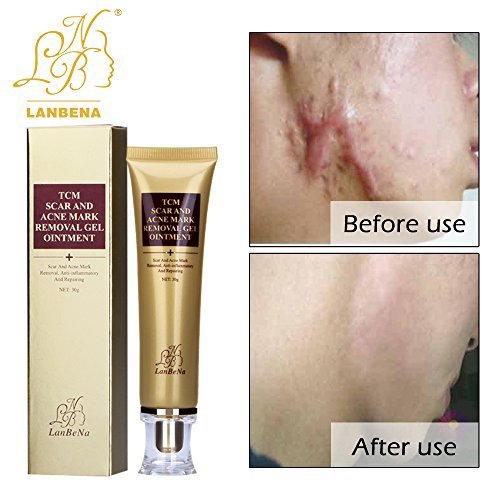 LANBENA Acne Scar Removal Cream Skin Repair Face Cream Acne...