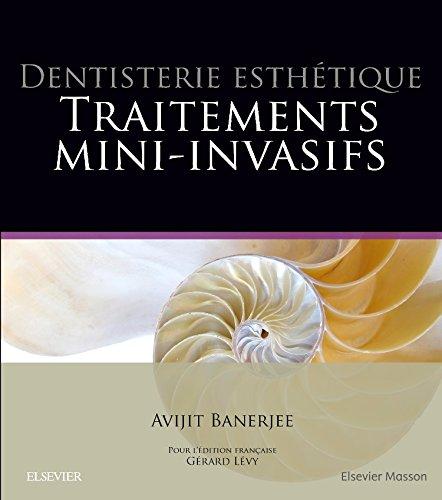 Dentisterie esthétique : traitements mini-invasifs: Traitement Mini-Invasifs par Avijit Banerjee