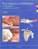 Techniques d'infiltration en orthopédie et médecine du sport - Un manuel pratique pour les médecins
