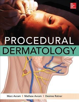 [(Procedural Dermatology)] [Author: Marc Avram] published on (February, 2015)