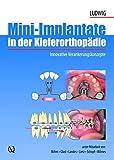 """51QKaGXz6KL. SL160  - """"Mini-Implantate"""": kleine Schraube, große Wirkung"""