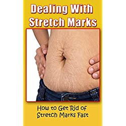 Dealing With Stretch Marks: How to Get Rid of Stretch Marks Fast