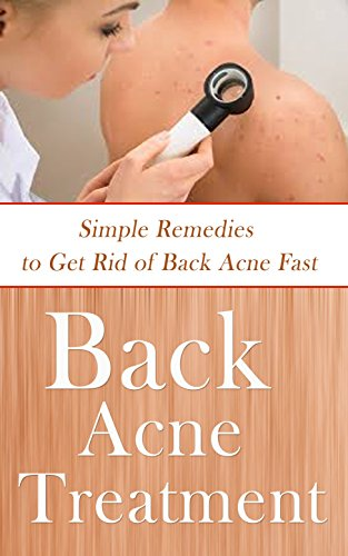Back Acne Treatment: Simple Remedies to Get Rid of Back Acne Fast (English Edition)