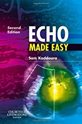 Echo Made Easy, 2e