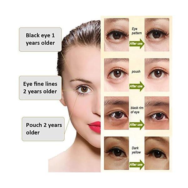 Crema de Ojos,Crema para los Ojos,Contorno de Ojos Anti Edad,Eye Cream,Serum Contorno de Ojos Anti arrugas, Elimina la…