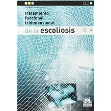 Tratamiento funcional tridimensional de la escoliosis (Medicina)
