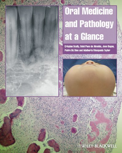 Oral Medicine and Pathology at a Glance (At a Glance (Dentistry))