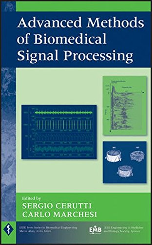 advanced-methods-of-biomedical-signal-processing-ieee-press-series-on-biomedical-engineering