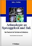Arthroskopie an Sprunggelenk und Fuß: Das Praxisbuch der Techniken und Indikationen -
