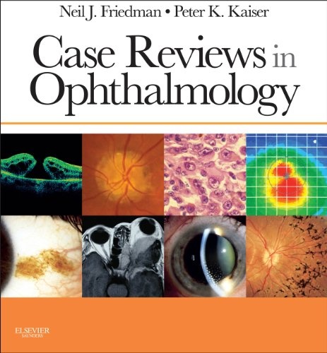 Case Reviews in Ophthalmology E-Book (Expert Consult Title: Online + Print) (Surgical Optics)