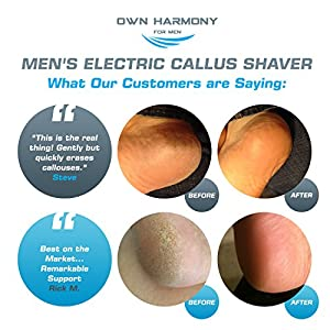 Electric Hard Skin Remover for Men by Own Harmony: USA's Best Rated Callus Remover- Rechargeable Pedicure Tools w 3 Coarse Rollers, Velvet-Smooth Foot Care- Professional Spa Pedi Feet File (USB Cord)