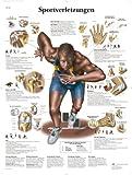 3B Scientific Lehrtafel - Sportverletzungen