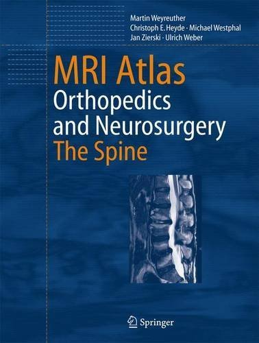 MRI Atlas: Orthopedics and Neurosurgery, The Spine by Martin Weyreuther (2006-10-31)