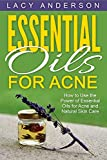 Natural Acne - Best Reviews Guide