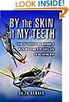 By the Skin of my Teeth: The Memoirs...