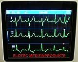 Elotec mobiles EKG-Gerät
