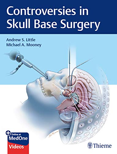 Controversies in Skull Base Surgery (English Edition)