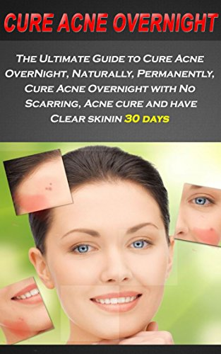 Acne: The Ultimate Guide to Cure Acne OverNight, Naturally, Permanently, Cure Acne...