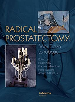 Radical Prostatectomy: From Open To Robotic por Roger Kirby