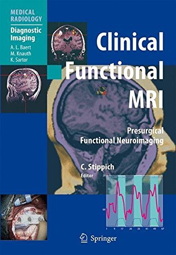 Clinical Functional MRI: Presurgical Functional Neuroimaging (Medical Radiology) (2007-03-05)