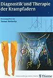 Diagnostik und Therapie der Krampfadern: Mit CD-ROM: Krampfadern erkennen und behandeln. Anatomie und Dopplersonographie der Venen und Venenklappen. und Vorschläge zur aktiven Selbstbehandlung
