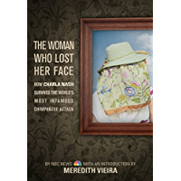 The Woman Who Lost Her Face: How Charla Nash Survived the World's Most Infamous Chimpanzee Attack (English Edition)