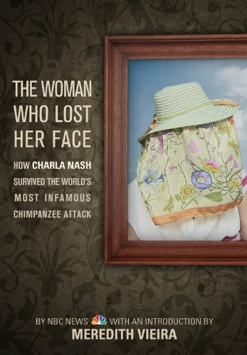 the-woman-who-lost-her-face-how-charla-nash-survived-the-worlds-most-infamous-chimpanzee-attack