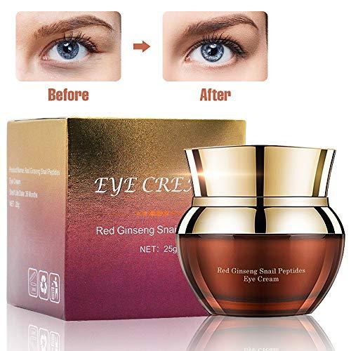 Charmss Augencreme Anti-Aging Anti-Falten verbessern feine Linien und Falten, entfernen Sie dunkle Kreise und Taschen für unter und um die Augen, feuchtigkeitsspendende Augencreme (25g). - Augen Unter Auge