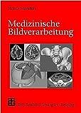 Medizinische Bildverarbeitung (XLeitfäden der Informatik)